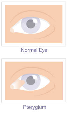 Pterygium Eye Surgery Englewood Colorado