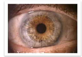 Corneal Transplantation - Englewood, Colorado