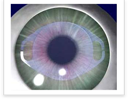Verisyse Phakic Intraocular Lens Englewood, Colorado - one of the most commonly performed medical procedures.