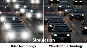 Older Technology vs Wavefront Laser Vision