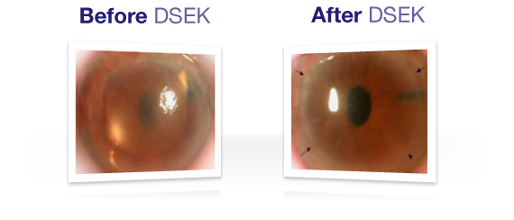 Before and After DSEK Corneal Transplant Surgery