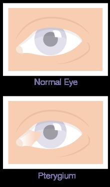 Pterygium Eye Surgery Englewood Colorado