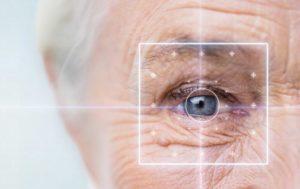 Elderly Eye LASIK